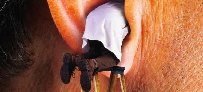 Таракан заполз в ухо: симптомы и как решить проблемы