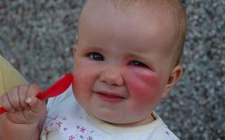 Что делать, если ребенка укусил в глаз комар
