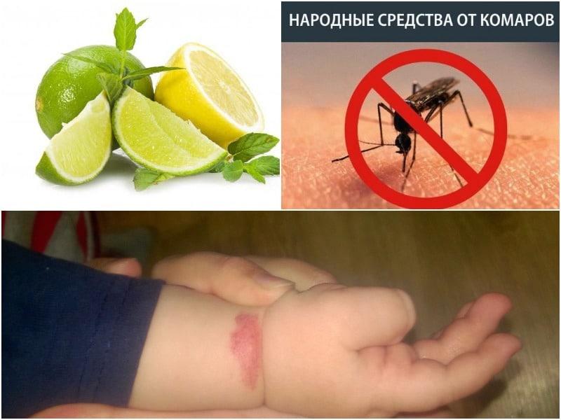 укусы комаров у детей фото народные средства