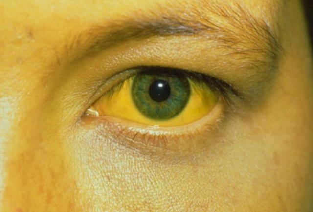 желтая лихорадка от москитов